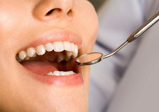 銀歯 セラミック 値段