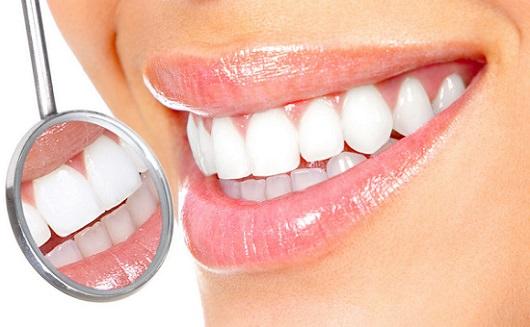 歯 ホワイトニング 値段
